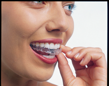 Take home teeth whitening tray